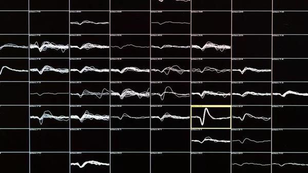 大脑植入100根电极:失明16年的患者重见光明